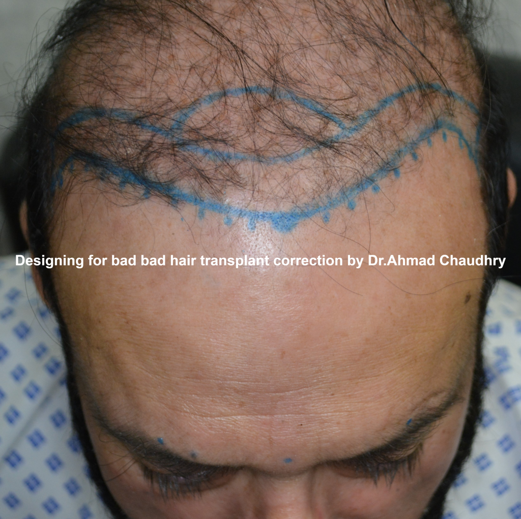 bad hair transplant repair clinic Lahore