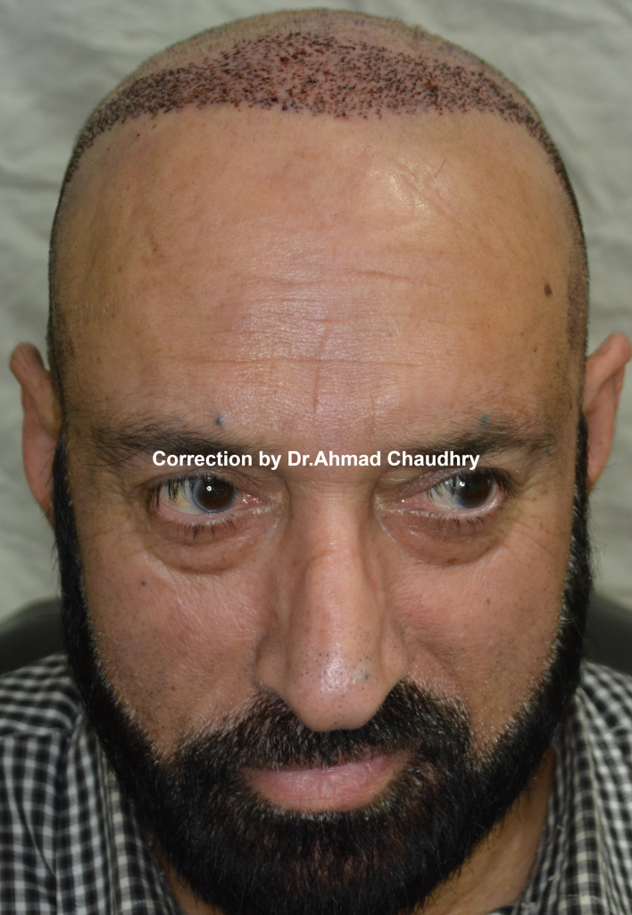 Fix bad hair transplant in Lahore