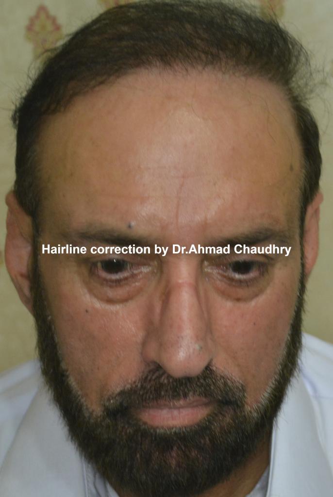 Plug hair transplant repair Lahore