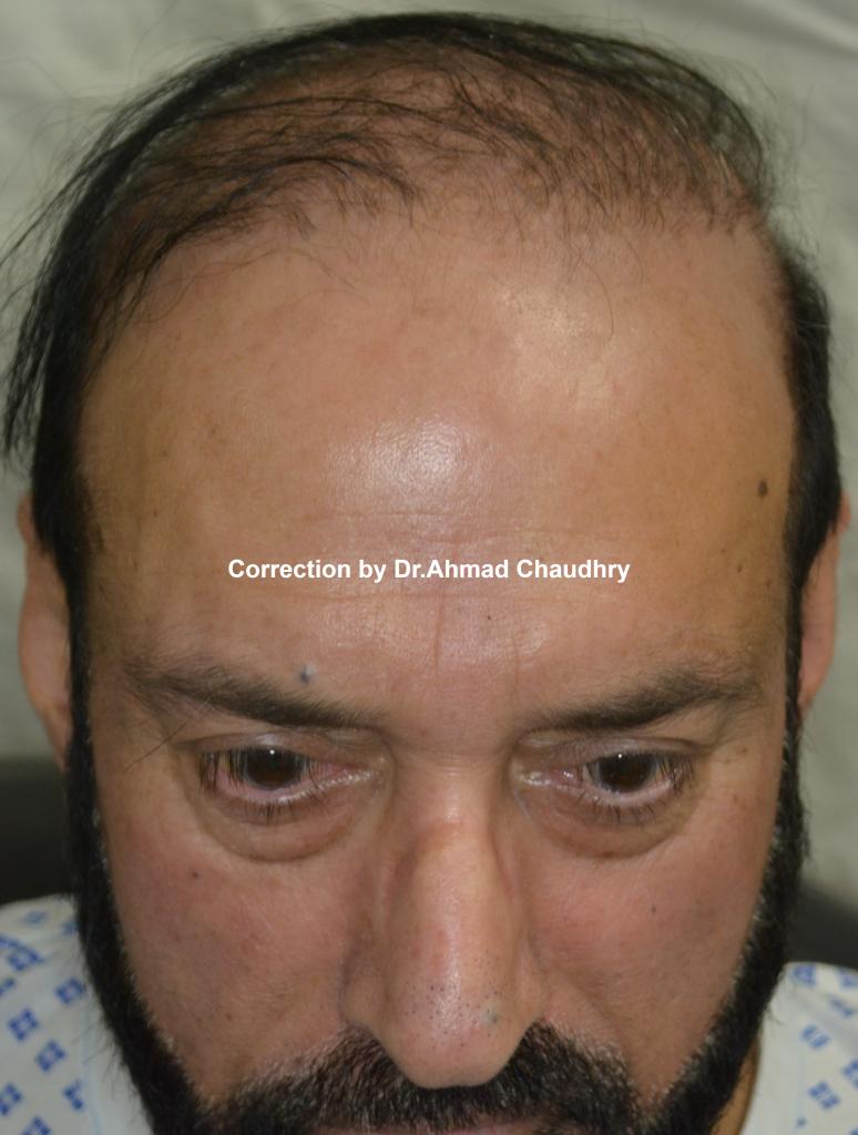 Repairing bad hair transplant Lahore
