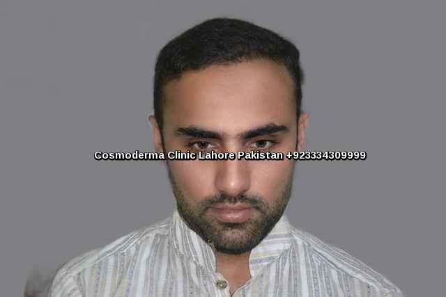 Best hair transplant results in Lahore six months later