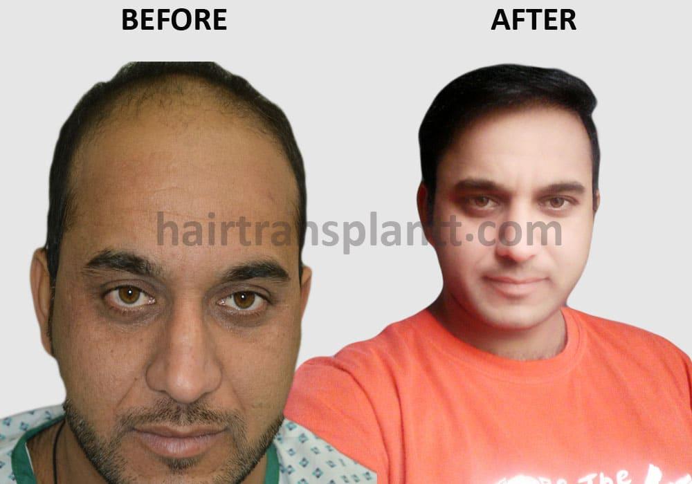 hair restoration Lahore