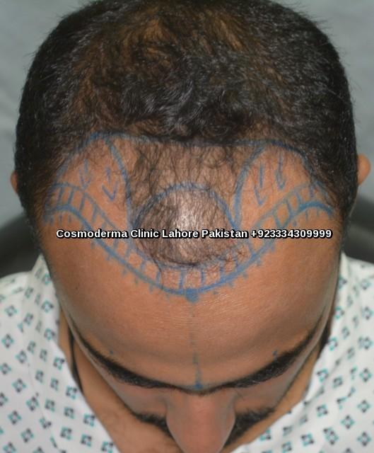 Marking designing front head