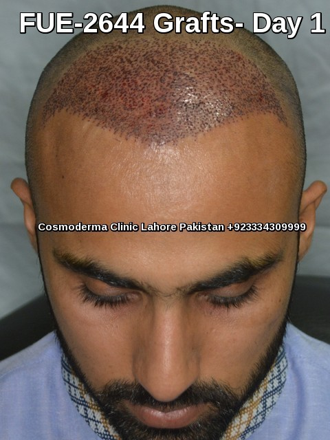 One day after hair transplant procedure