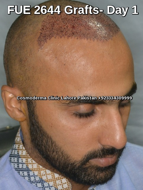 Post op hair transplant photo day 1
