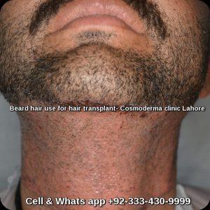 Beard-hair-use-for-hair-transplant-Lahore-Pakistan