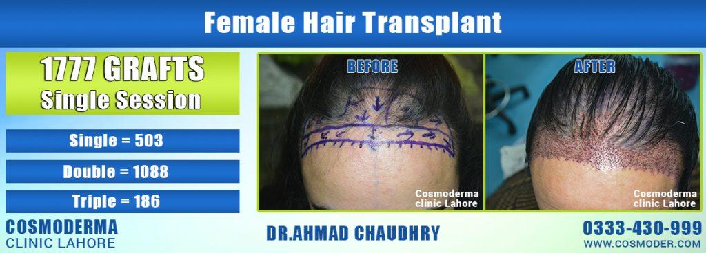 Female-hair-transplant-Lahore