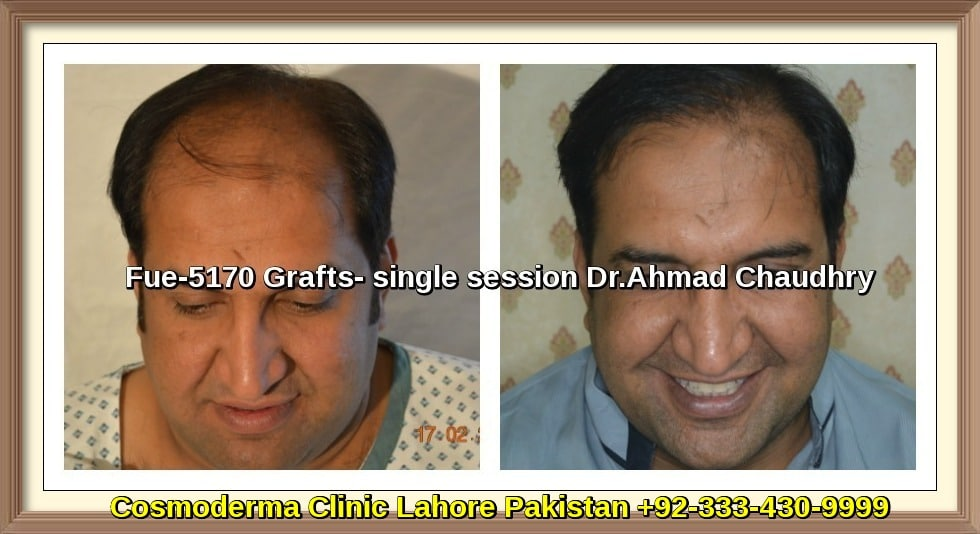 Fue-5170-grafts-hair-transplant-results-lahore-Pakistan