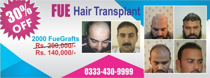 Fue hair transplant cost packages Lahore Pakistan