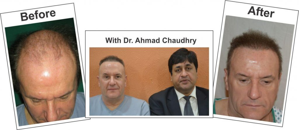 Fue-hair-transplant-pakistan-result