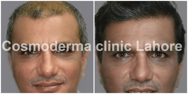 Fue-hair-transplant-results-Lahore