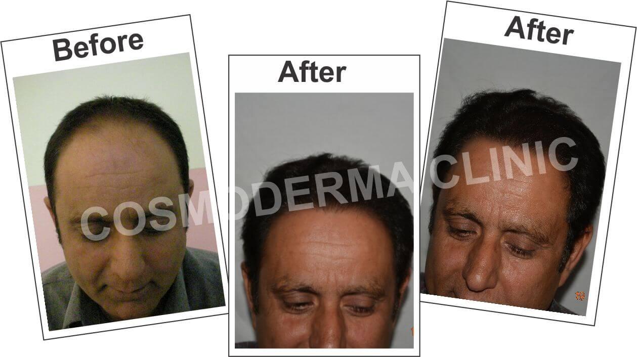 Hair-Restoration-in-Pakistan-Dr.Ahmad_