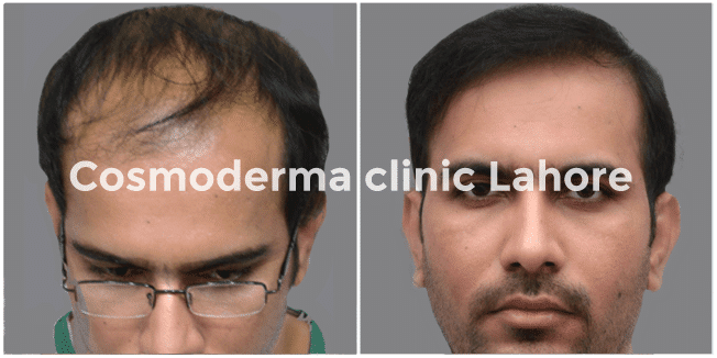 Hair-transplant-before-after01