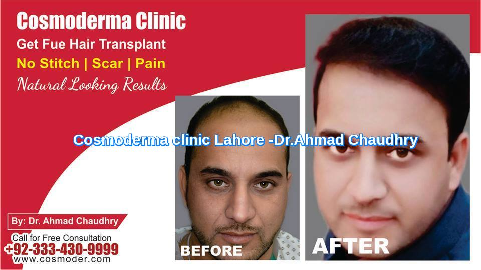 Realistic-expectations-after-FUE-hair-transplant