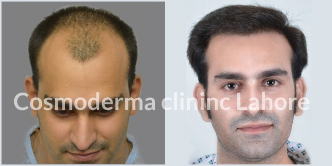 Top hair transplant results in Lahore