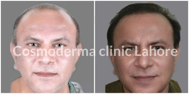 Body hair transplant to head results