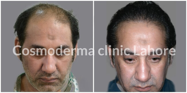 Hair transplant before and after Lahore