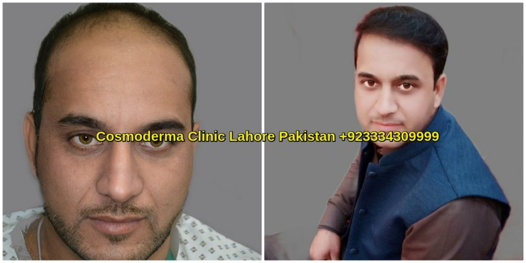 Hair Transplant Photos with Thick Density