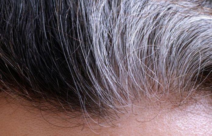 Regaining original color hair