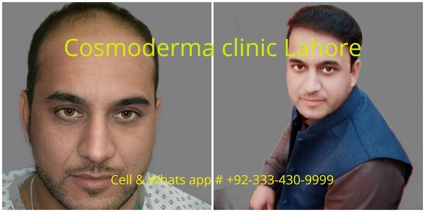 FUE 2900 grafts Cosmoderma clinic best hair surgeon Lahore