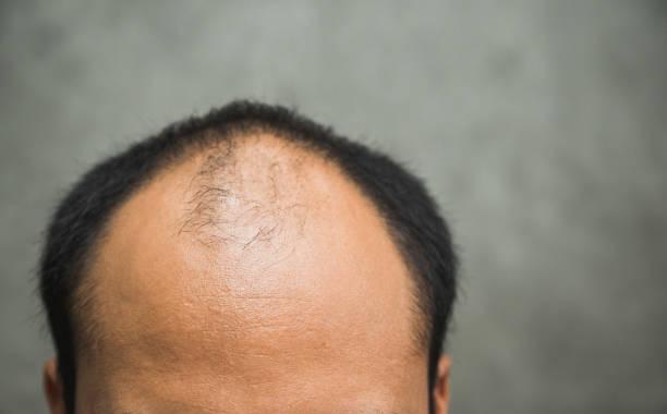 Frontal baldness