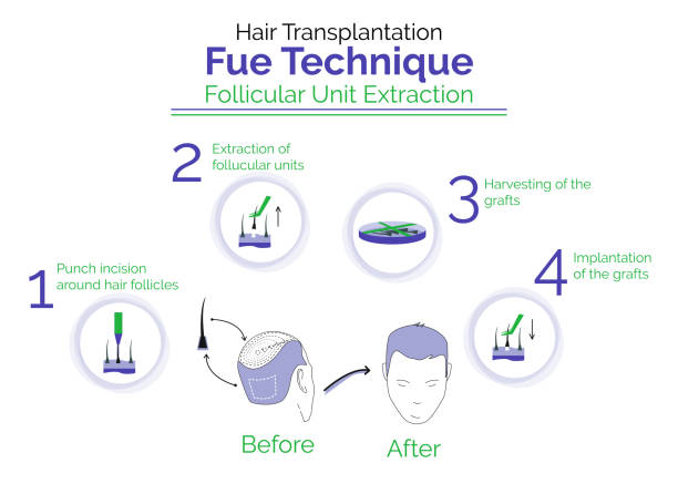Fue hair transplant technique Lahore