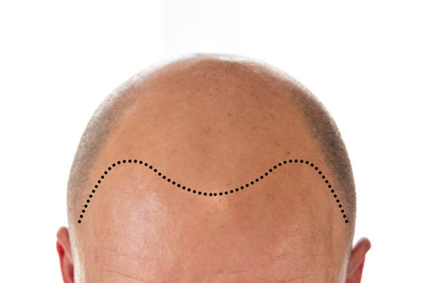 Why does male pattern baldness happen