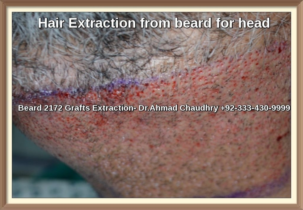 how many hairs are extracted from a beard