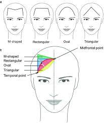 Female hairline types