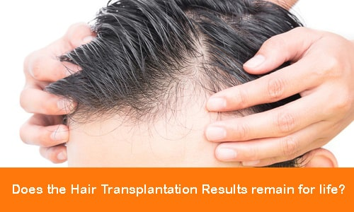 Is hair transplant permanent