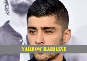 Narrow-or-Low-Hairline