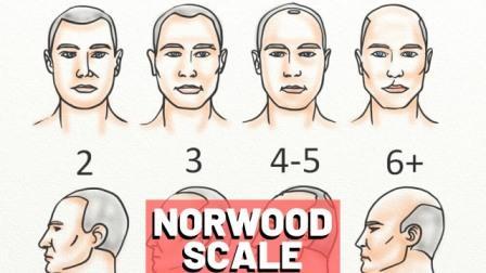 Norwood scale baldness