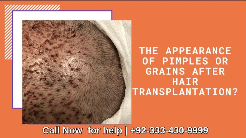 Pimples after hair transplant