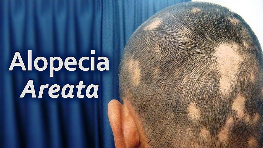alopecia-areata-treatment -Lahore-Pakistan