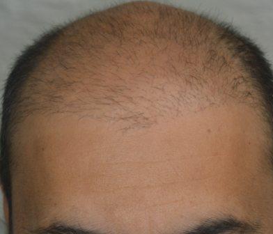 Can i Redo hair restoration procedure