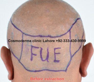 Donor area follicles before extraction