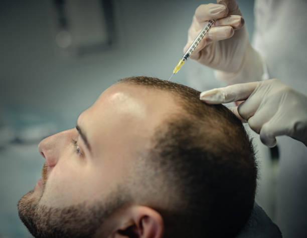 Hair fall stop treatment Lahore