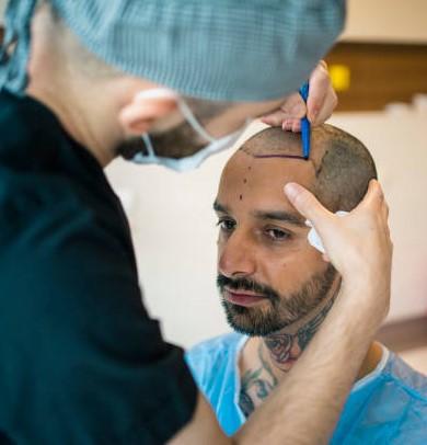 best hair transplant doctor Lahore