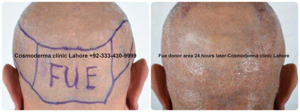 hair regrowth after Fue hair transplant donor area