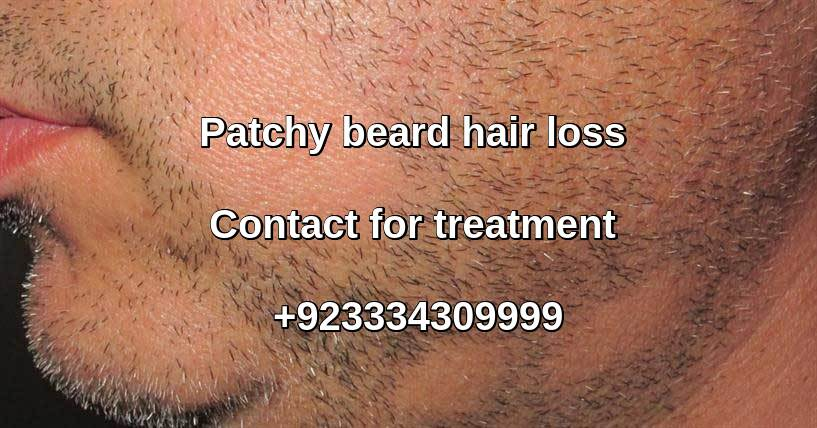 Alopecia Barbae treatment Lahore Pakistan