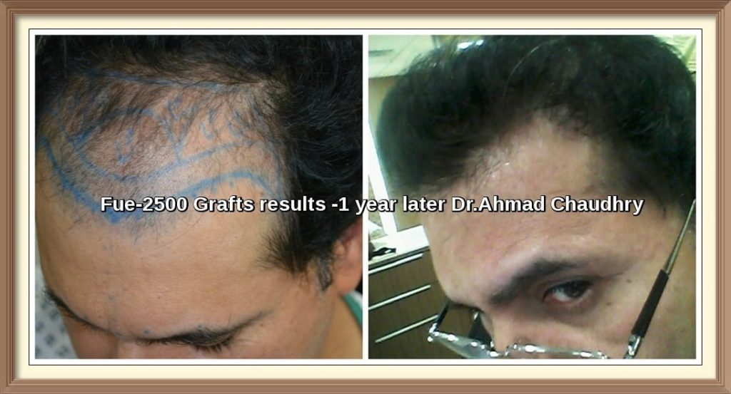 DHI FUE Hair Transplant Results Lahore Pakistan