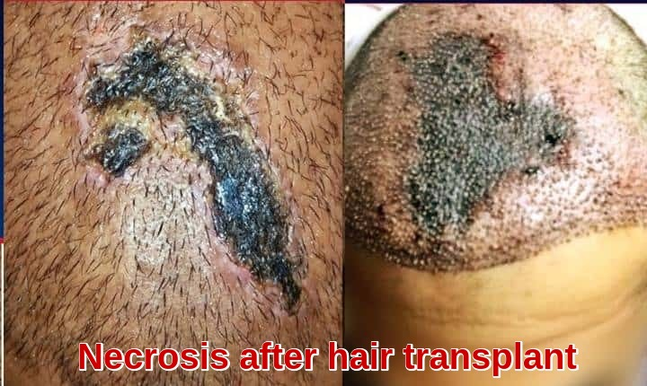 Necrosis after hair transplant