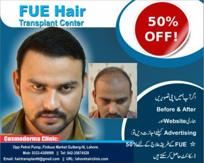 cheapest Fue hair transplant Pakistan