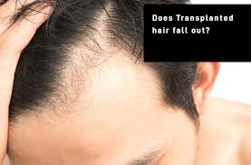 transplanted hair fall out