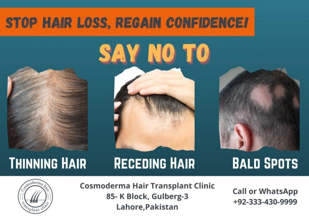 Baldness treatment Lahore