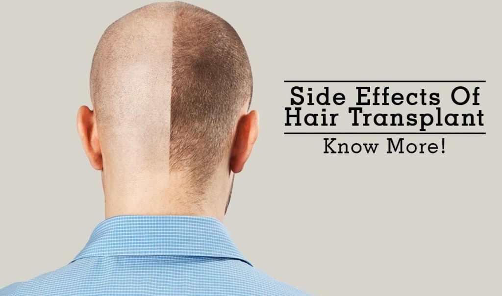 what are side effects of hair transplant