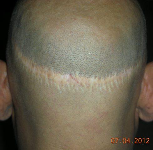 FUT hair transplant Lahore Pakistan