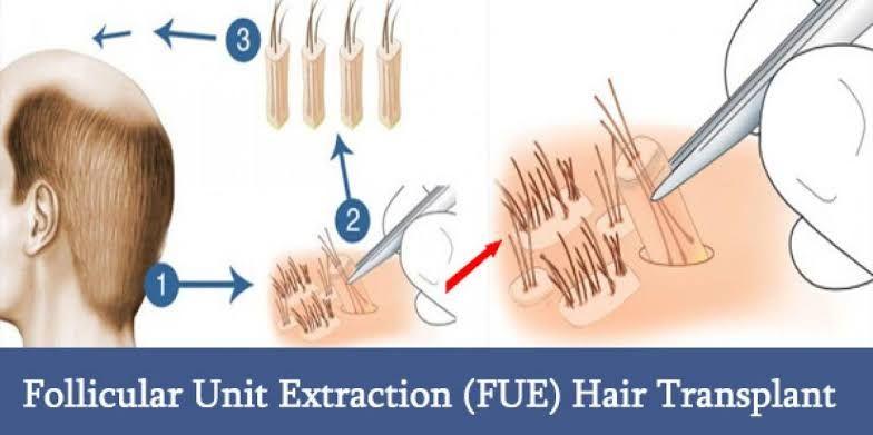 Fue hair transplant clinic Lahore Pakistan