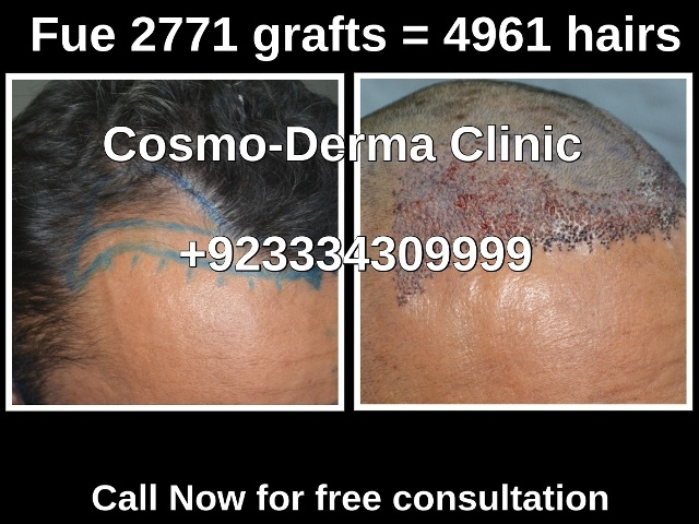 Fue hair transplant specialist clinic Lahore