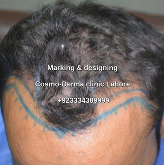 Marking -designing before Fue procedure